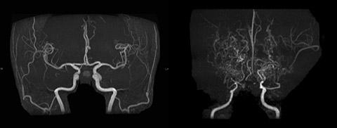 両側内頚動脈