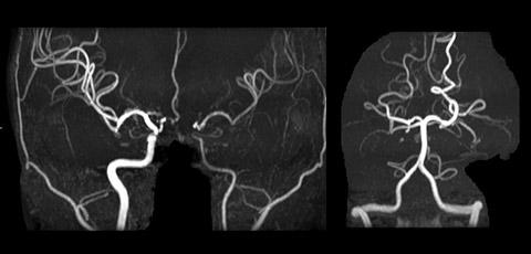 左内頚動脈高度狭窄症